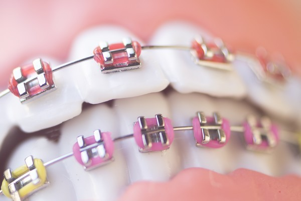 Incidents orthodontiques